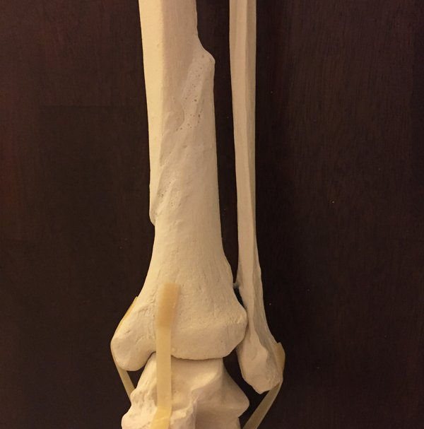Custom anatomical model of distal tibia fracture deformity