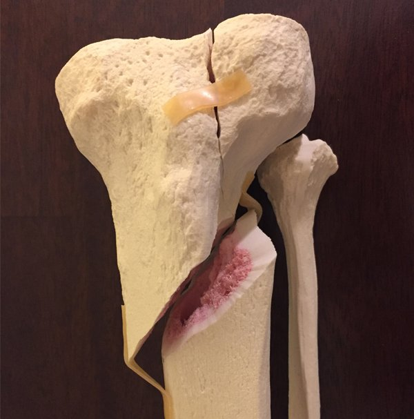 Custom anatomical model of Tibial Plateau fracture
