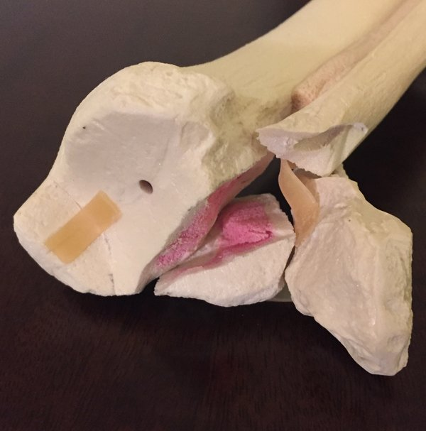 Custom anatomical model of a trimalleolar ankle fracture