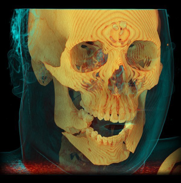 3D Volume Rendering of CT Scan of Mandible Fractures