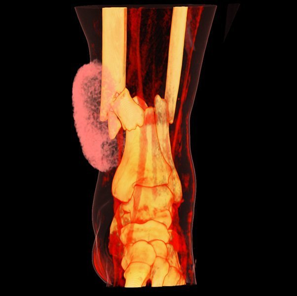 3D Volume Rendering of Tibia and Fibula fractures