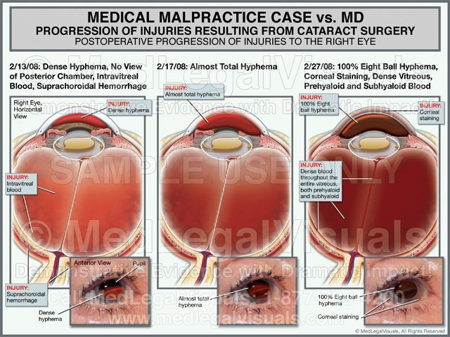 Medical Malpractice Cataract Eye Surgery Case specific Medical Exhibit