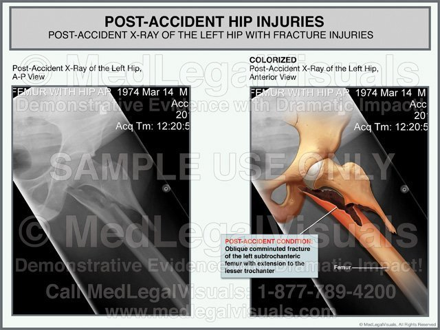 Post-Accident X-Ray Hip and Femur Fracture Injuries Medical Exhibit