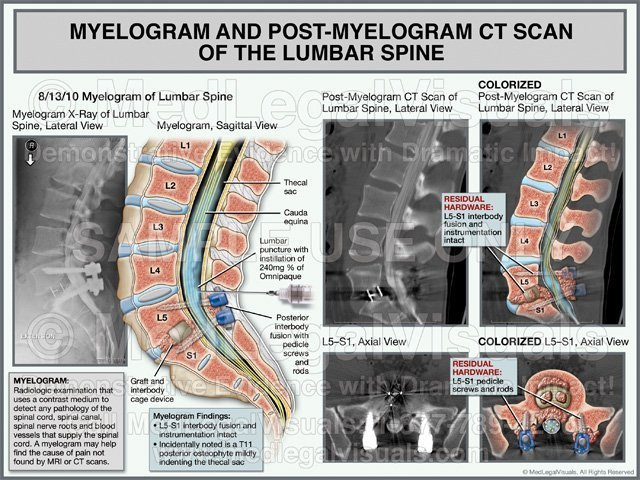 Myelogram and Post Myelogram CT Scan of the Lumbar Spine Medical Exhibit