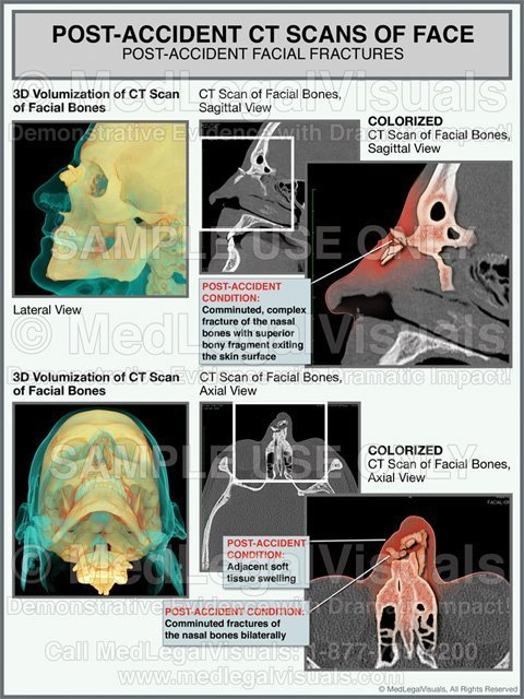 Trial Exhibits for Injury Cases of Nasal Bone Fractures Colorized CT Scan Medical Exhibit