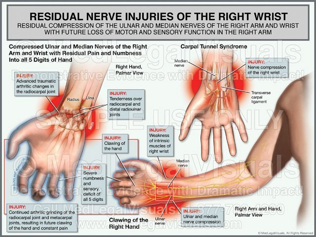 Nerve Injuries of the Right Wrist Medical Exhibit