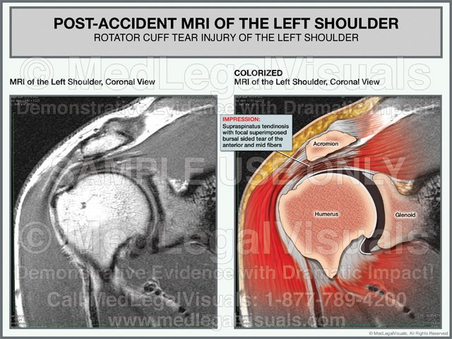 Colorized MRI of Rotator Cuff Tear Medical Exhibit
