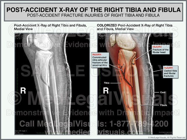 Tibia and Fibula Fracture Injuries Colorized X-ray Medical Exhibit