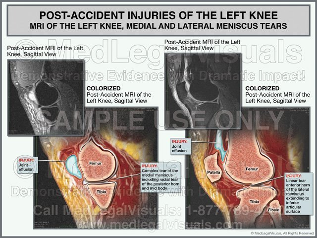 Medial and Lateral Meniscus Tear Injuries Colorized MRI Exhibit