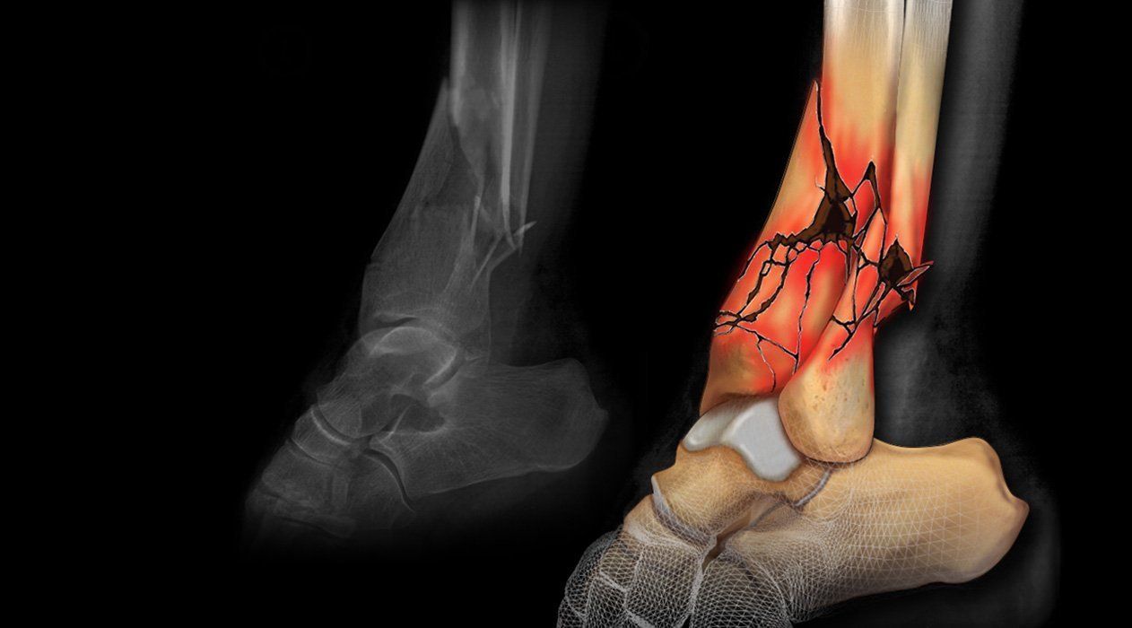 ankle fracture colorized x-ray medical exhibit