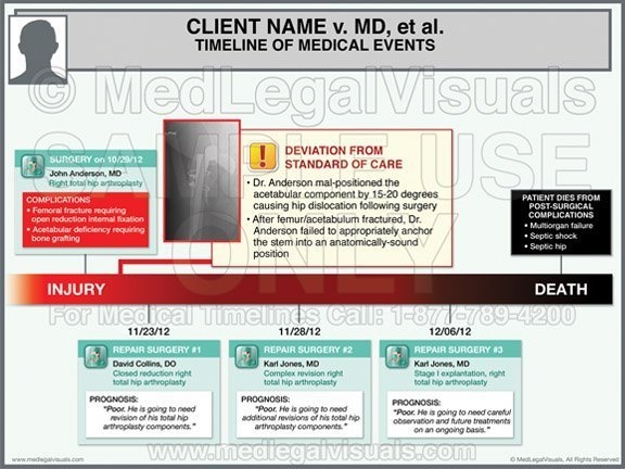 Medical Timeline Exhibits for Medical Malpractice Cases