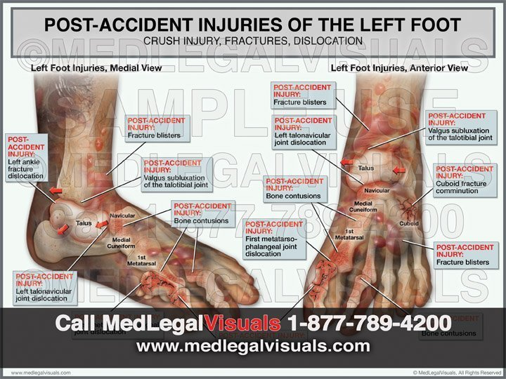 Foot Fracture Injury Exhibits for Trial Attorneys