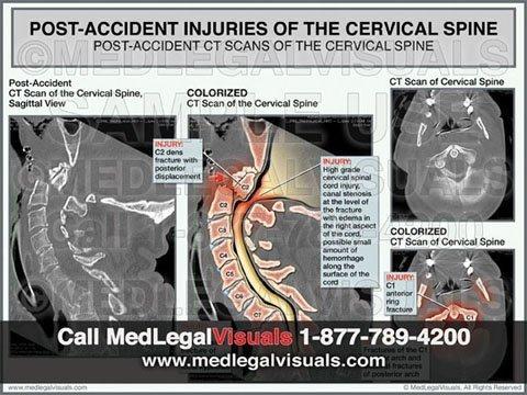 Contact MedLegalVisuals Florida Office trial Exhibits