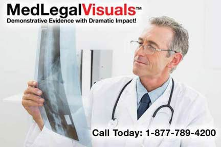Free Case Review by Our Medical Experts at MedLegalVisuals
