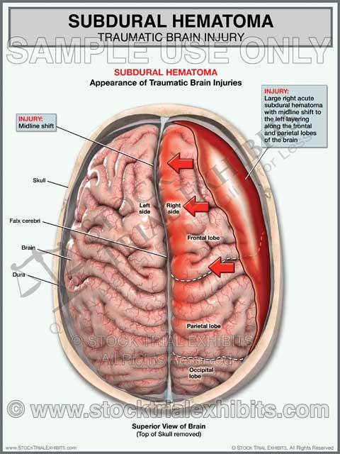 Brain Injury Trial Exhibit