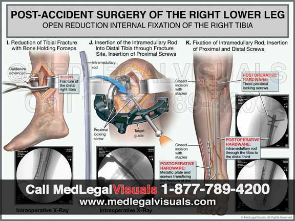 Custom-Medical-Illustrations-MedLegalVisuals-leg-fracture-surgery