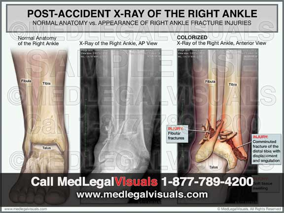 Ankle Fracture Injury Colorized X-Ray