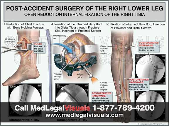 Leg Fracture Surgery Exhibit