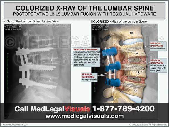 Trial Exhibits in Manhattan Lumbar Fusion