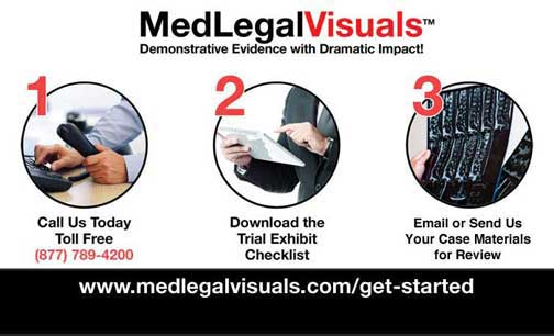 Demonstrative Evidence Services from MedLegalVisuals