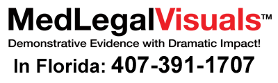 Trial-Exhibits-for-Tampa-Injury-Cases-MedLegalVisuals