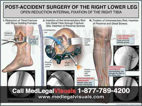 Trial-Exhibits-for-Tampa-Injury-Cases-leg-surgery-trial-exhibit