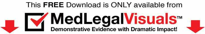 Trial-Exhibits-for-Tampa-Injury-Cases-MedLegalVisuals-checklist