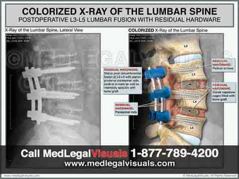 Trial-Exhibits-for-Tampa-Injury-Cases-colorized-xray-lumbar-fusion