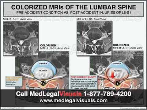 Trial-Exhibits-for-Tampa-Injury-Cases-lumbar-disc-herniation