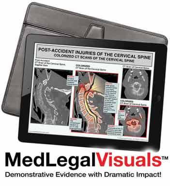Digital-Exhibits-for-Mediation-MedLegalVisuals