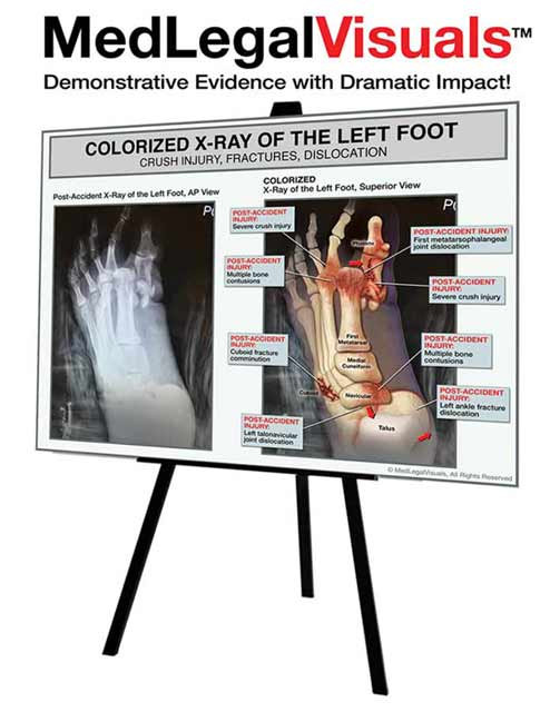 MedLegalVisuals - Maximize the Value of Your Next Injury Case!