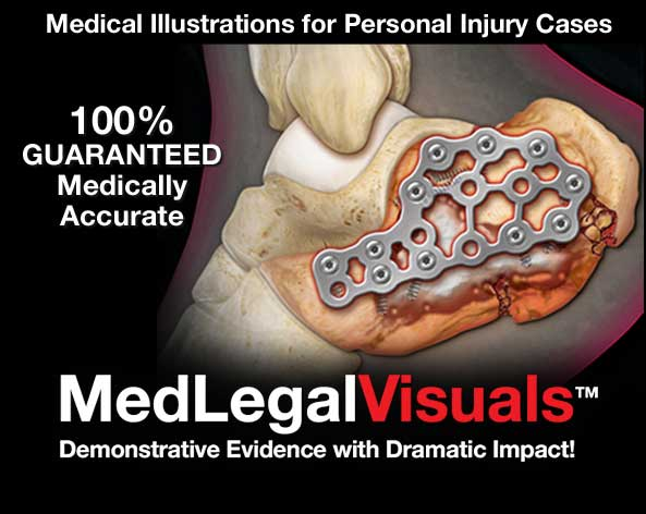 Medical-Illustrations-Florida-Injury-Cases