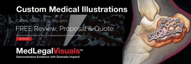 Custom-Medical-Illustrations-for-New-York-Attorneys