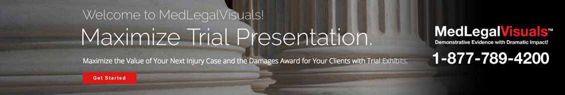 Visuals for Trial Presentation
