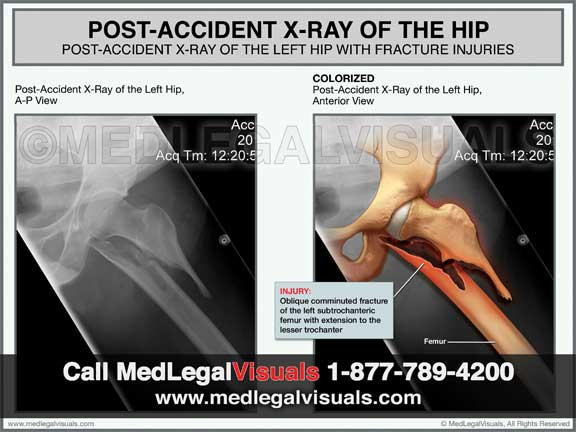 Medical Illustrations in Florida for injury cases