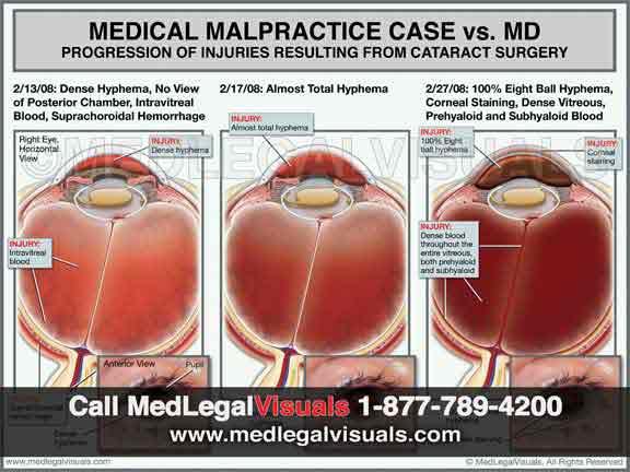 Medical-Illustrations-Florida-medical-malpractice