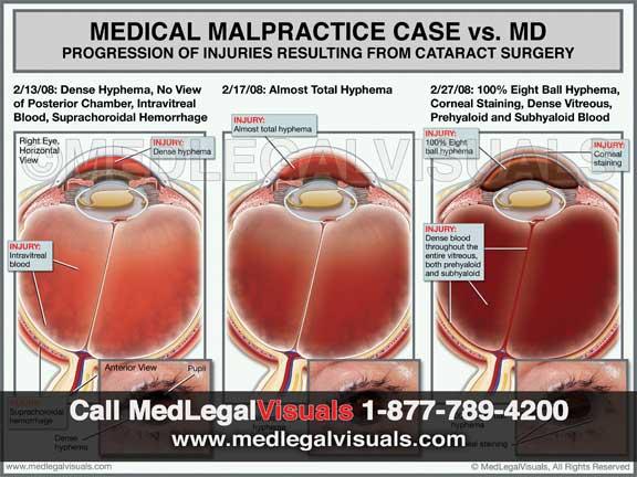 Medical-Illustrations-medical-malpractice-New-York