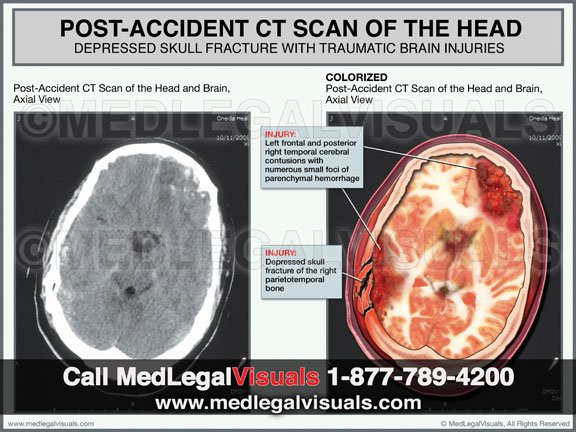 Brain Injury Visuals for TBI Injury Cases from MedLegalVisuals