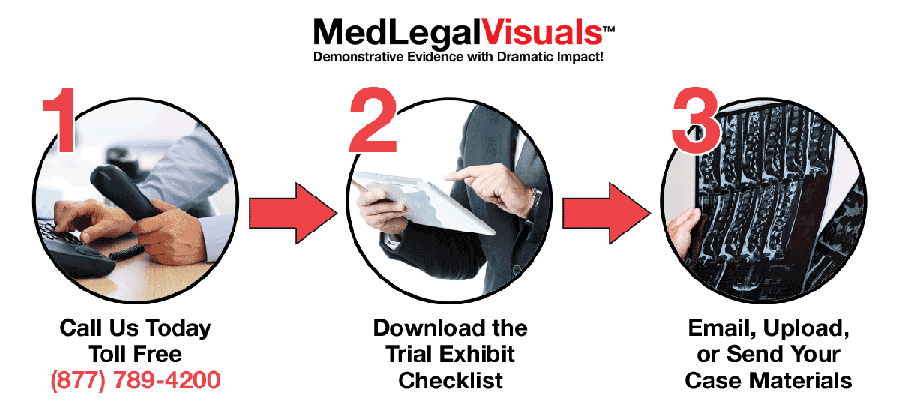 Brain-Injury-Visuals-Get-Started-with-MedLegalVisuals