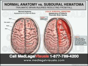 Brain-Injury-Visuals-Subdural-Hematoma-MedLegalVisuals